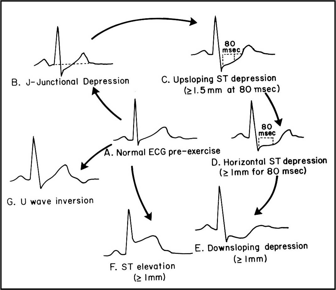 Ecg learning center an introduction to clinical electrocardiography ecg ischemic changes with excersize ccuart Gallery
