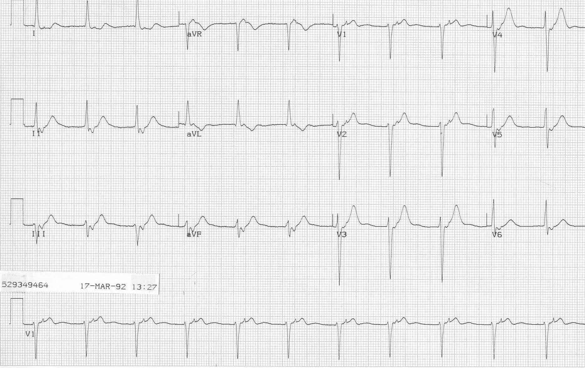 picture about Printable Ekg Strips known as ECG Understanding Heart - An arrival in direction of health-related