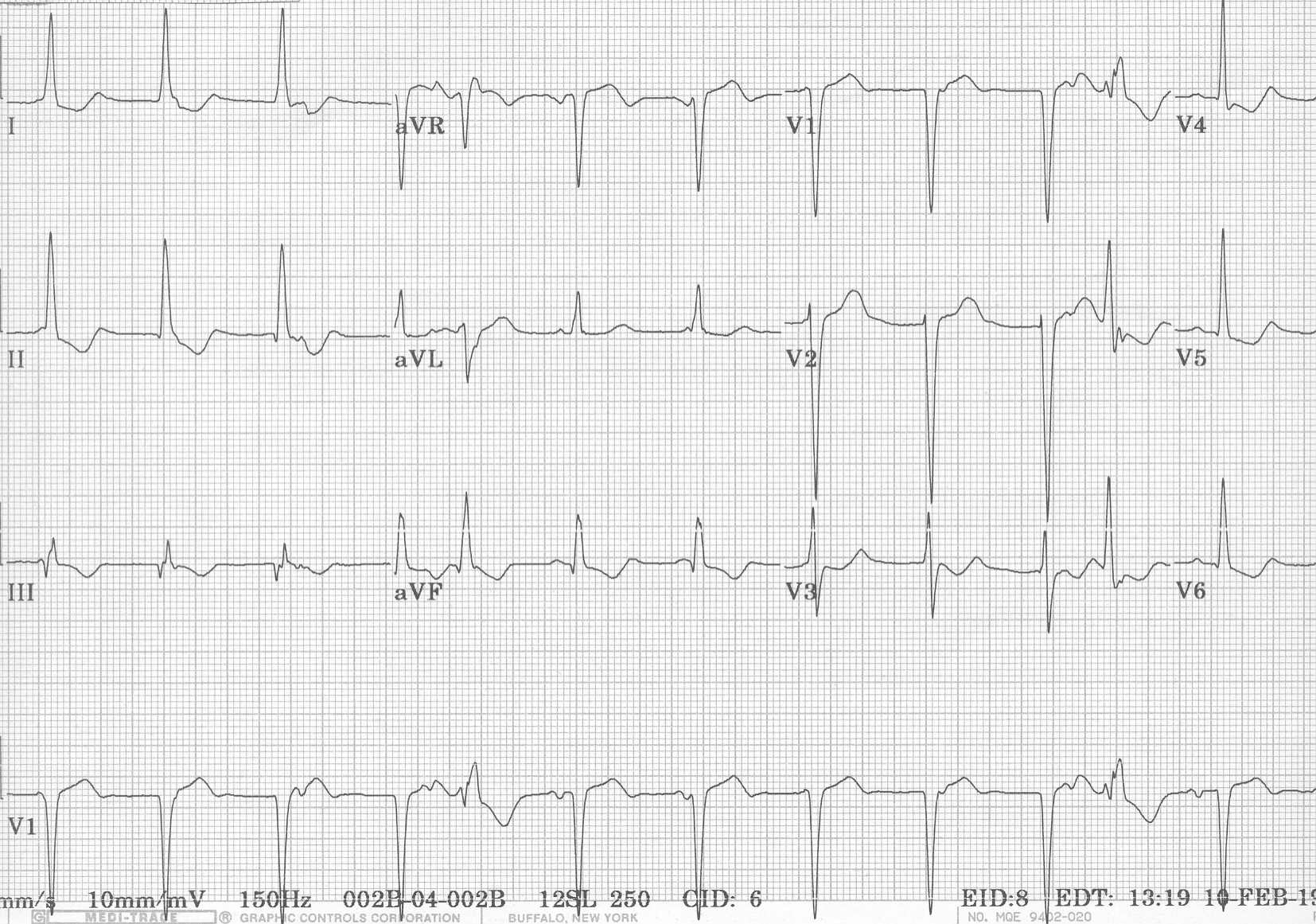 ECG Learning Center - An introduction to clinical