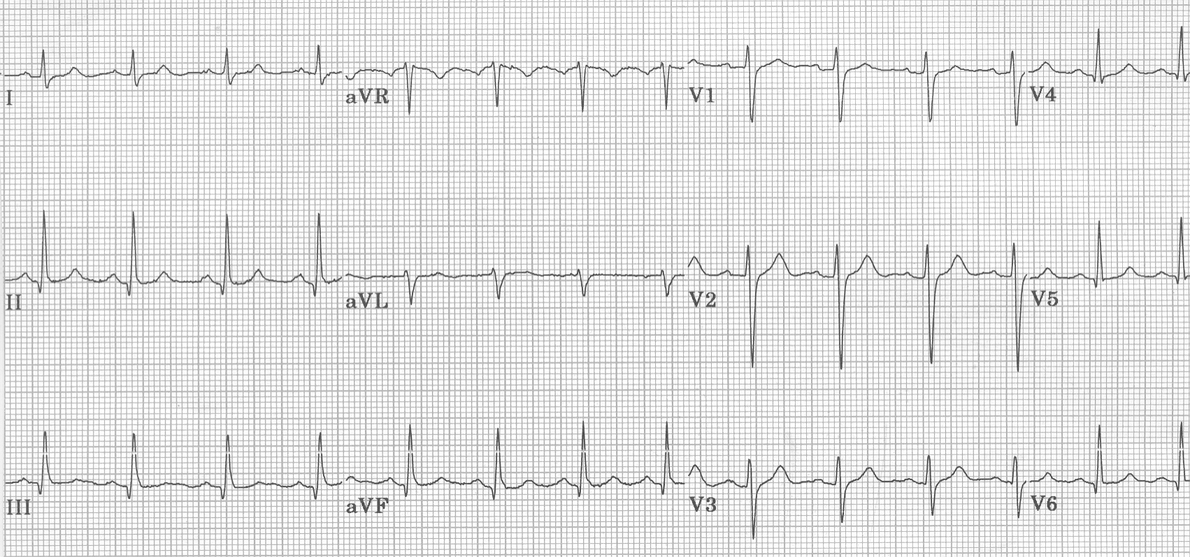 photo relating to Printable Ekg Strips titled ECG Studying Centre - An arrival towards health-related