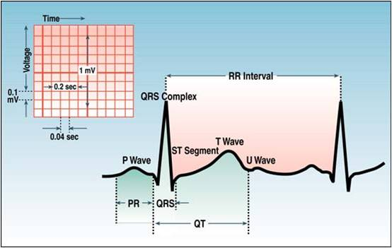 Ecg learning center an introduction to clinical electrocardiography ecg waves and intervals ccuart Gallery