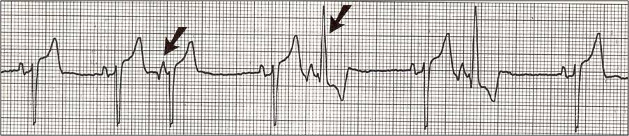 Vt vs svt moreover Young Patient With Palpitations On Exertion besides Aberrant Conduction likewise Extrasystole Premature Atrial Contraction Premature Ventricular Contraction additionally Wide  plex Tachycardia Ventricular Tachycardia Or Not Ventricular Tachycardia Remains. on ventricular aberration