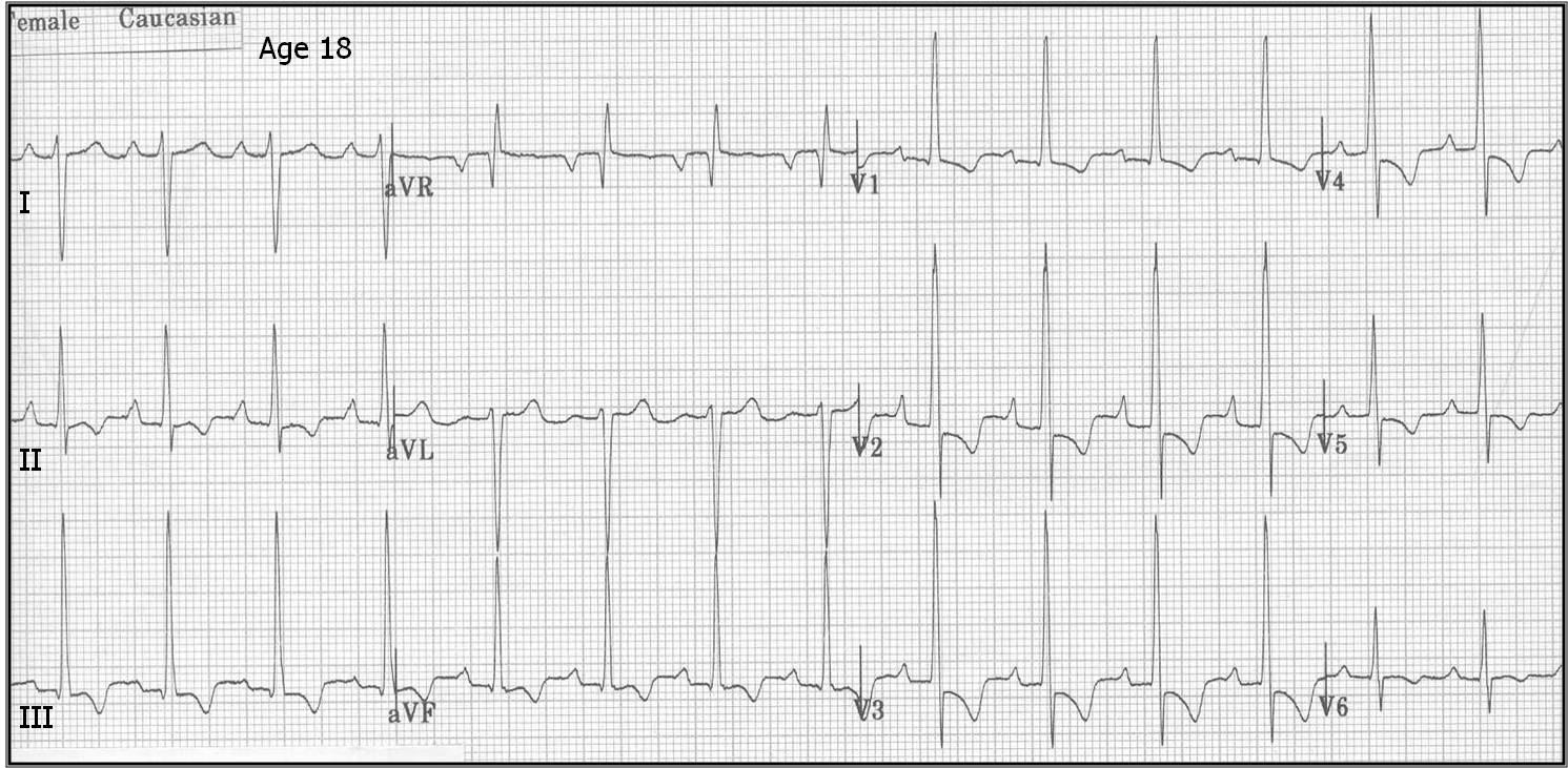 What does a normal ecg look like 11