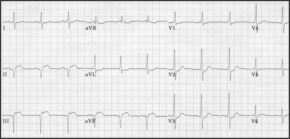 ECG Learning Center - An introduction to clinical ...
