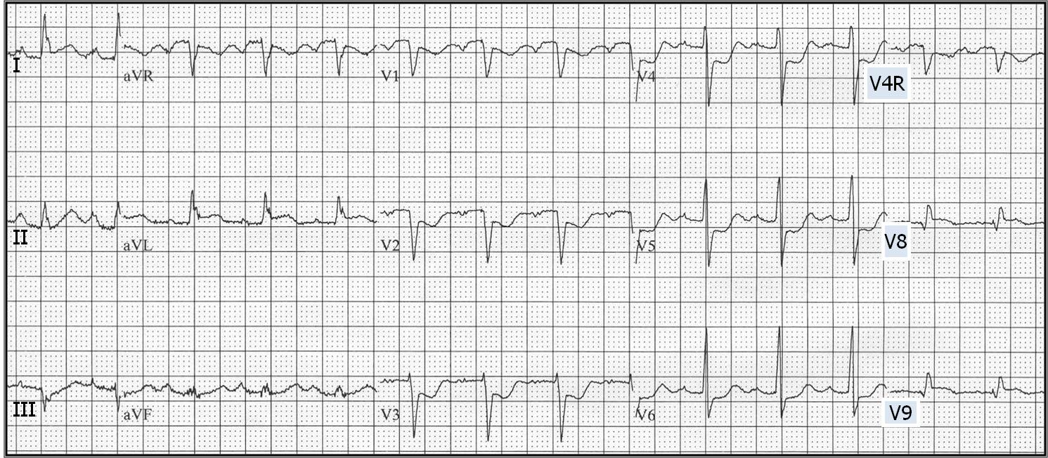 ECG Learning Center - ...Q Wave
