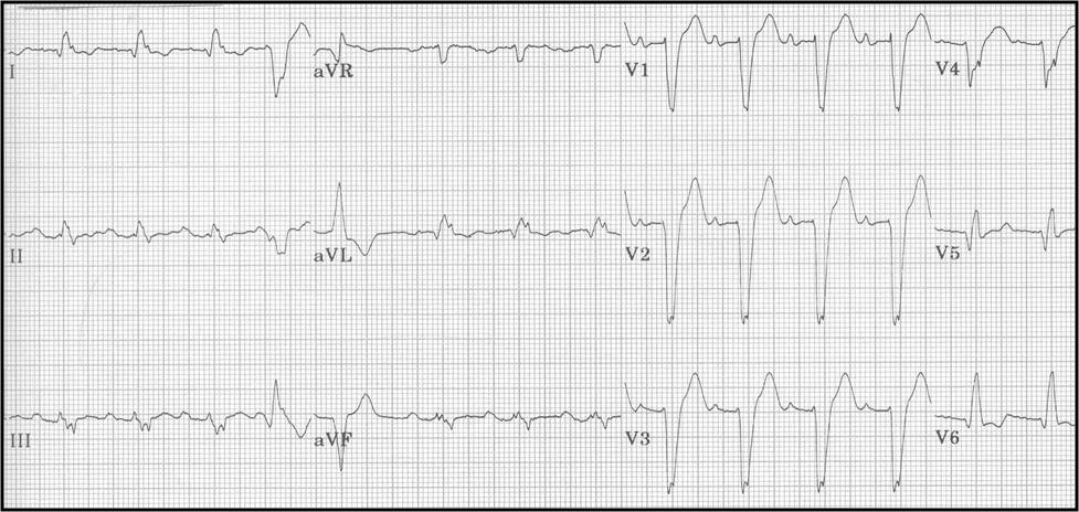 ECG Learning Center An Introduction To Clinical Electrocardiography Unique Ecg Pattern