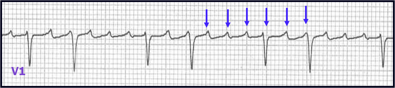 ecg learning center an introduction to clinical electrocardiography
