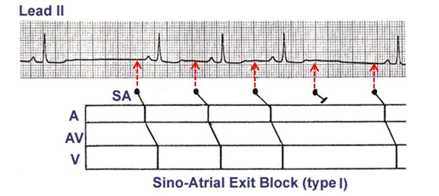 Ecg learning center an introduction to clinical electrocardiography type ii sa block ccuart Image collections
