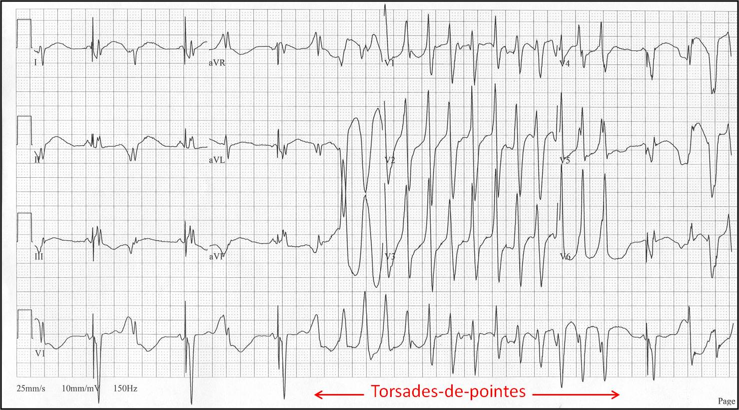[Torsades de pointes]{Frank G.Yanowitz, M.D.}Brief episode of torsade-de-pointes in a patient with a ventricular pacemaker having PVC's in a pattern of bigeminy.