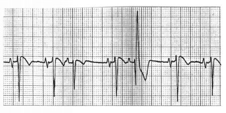 What is the diagnosis of the FLB (funny-looking-beat) in this Lead V1 ECG rhythm strip?