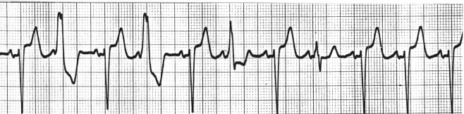 In this V1 rhythm strip there are 4 FLB's (Funny-looking-beats) in addition to the normal sinus beats. What are they?