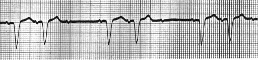What is the diagnosis of this bigeminal rhythm?