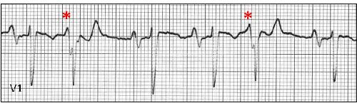 What type of arrhythmia is seen here?