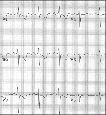 When interpreting an ECG, right ventricular hypertrophy (RVH) can mimic which of the following conditions?
