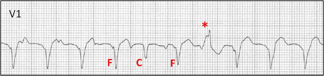 What is this arrhythmia?